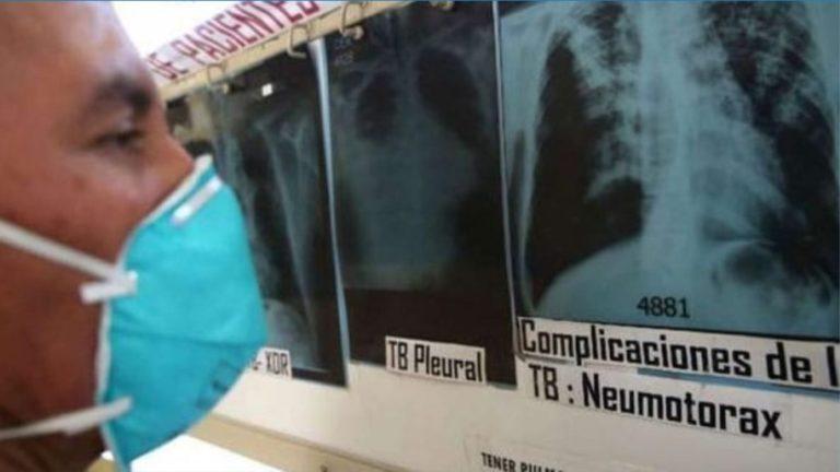 Red de Salud Islay: A pesar del Covid, transmisión de TB pudo haberse incrementado
