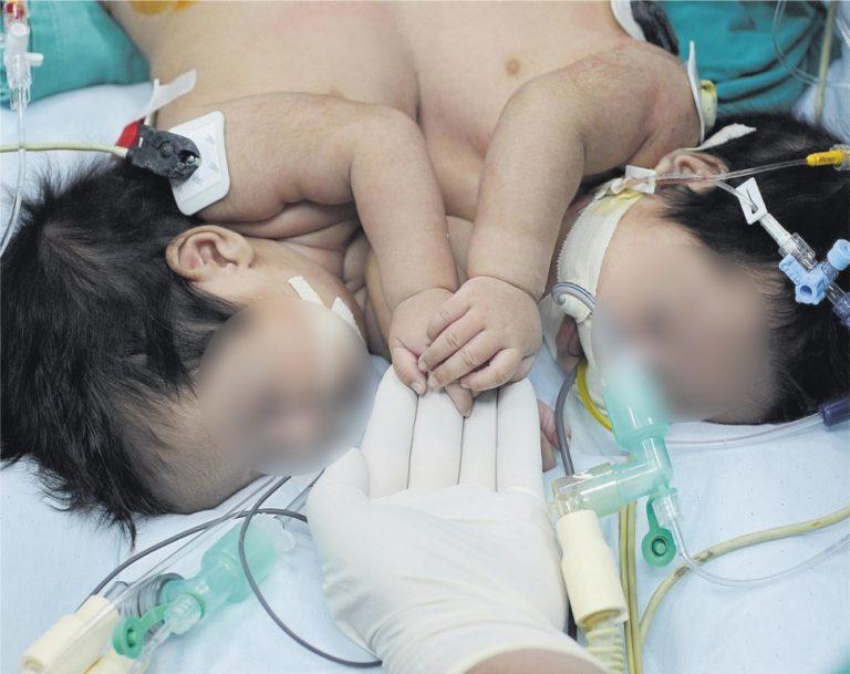 Nacen bebés siameses en Arequipa